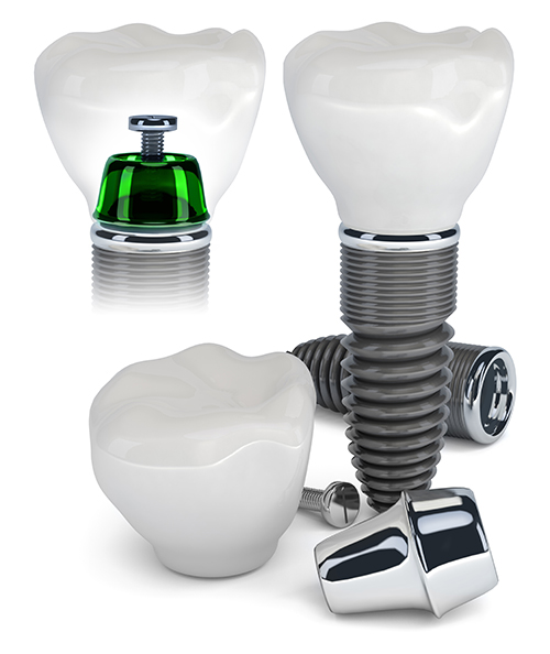 dental implants in West Hollywood