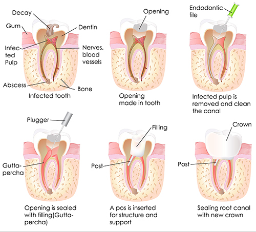 Root Canal in Miracle Mile