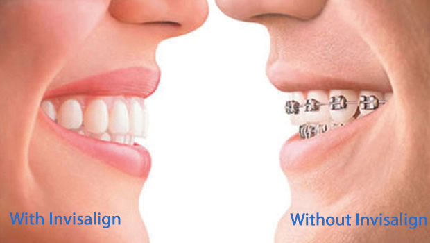 Invisalign Dentist in Miracle Mile
